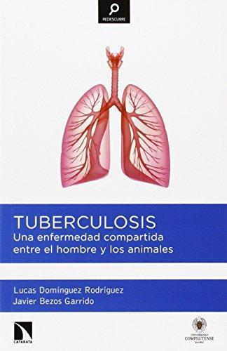 Tuberculosis Una Enfermedad Compartida Entre El Hombre Y Los Animales