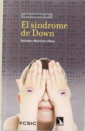 Sindrome De Down, El